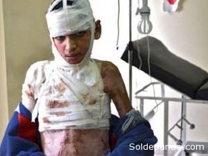 La guerra civil en Siria  sigue sumando miles de muertos y heridos sobre todo civiles.