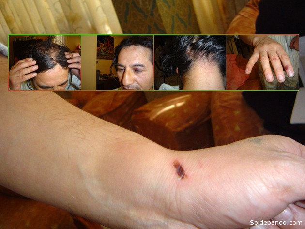 Los signos de la tortura que policías anti-narcóticos infringieron a García Mérida en abril del 2006, quedando de ello marcas indelebles en su cuerpo.   Foto Defensoría del Pueblo Cochabamba